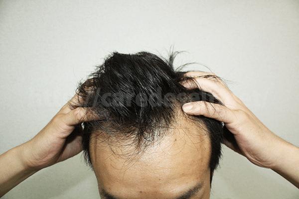チャップアップは頭皮マッサージをすることで効果アップ!?