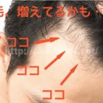 【濃くなれ】生え際(おでこ)の産毛を太く育てる裏技2選!
