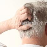 チャップアップで頭皮が赤くなった?かゆみや炎症の対処法!