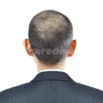 【写真付き結果発表】チャップアップは頭頂部のつむじハゲにどう?